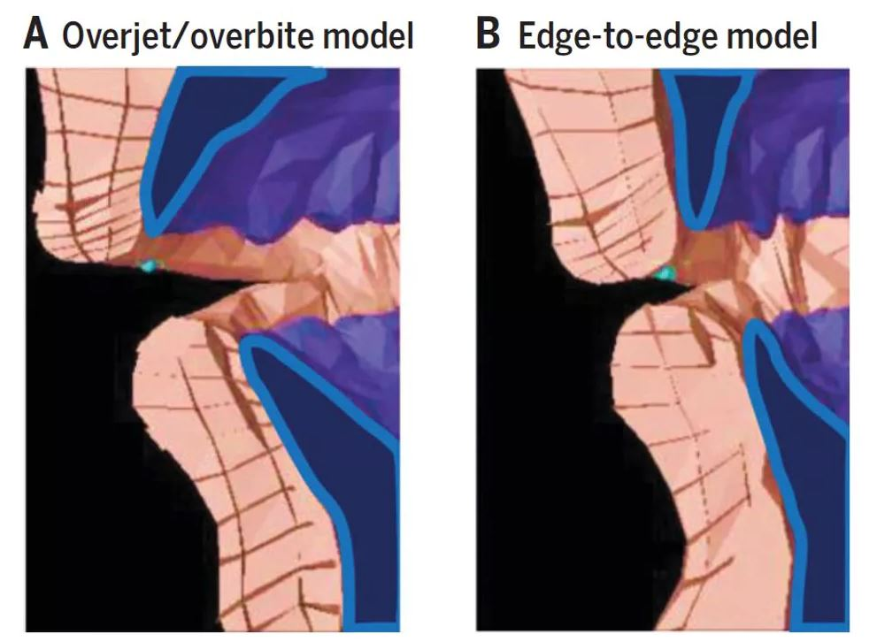 Biomechanical model of producing an 'f' sound with an overbite/overjet (left) versus an edge-to-edge bite (right). - Image Credit: Scott Moisik,  CC BY-ND
