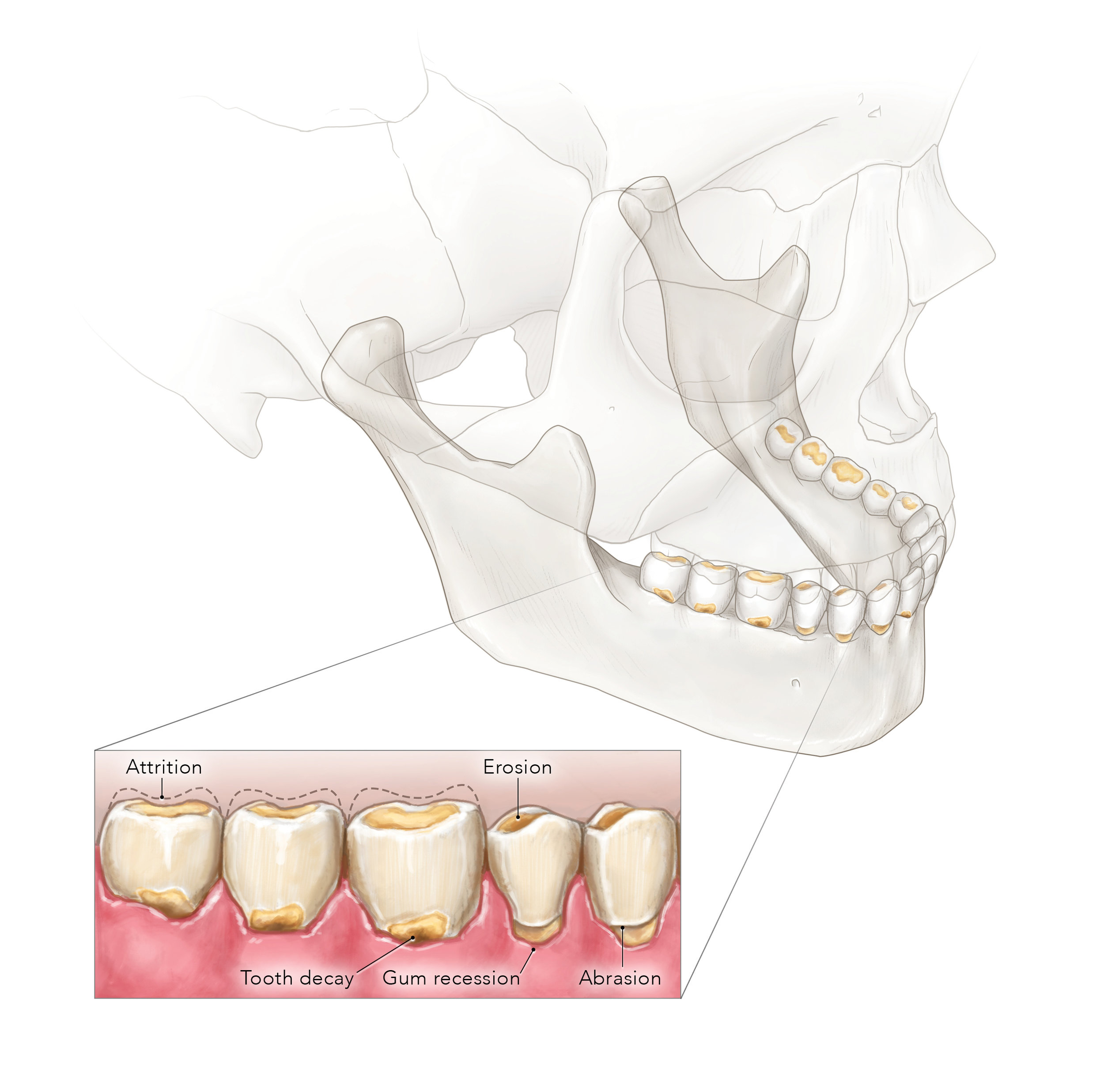 Tooth wear and decay_1.jpg