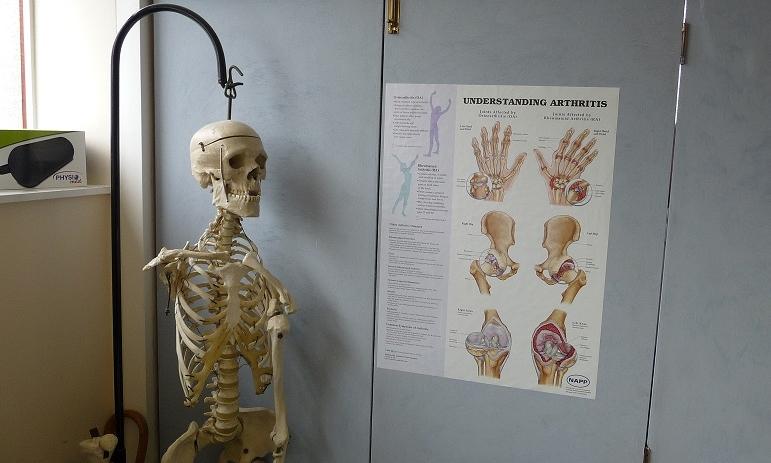 Arthritis2.JPG
