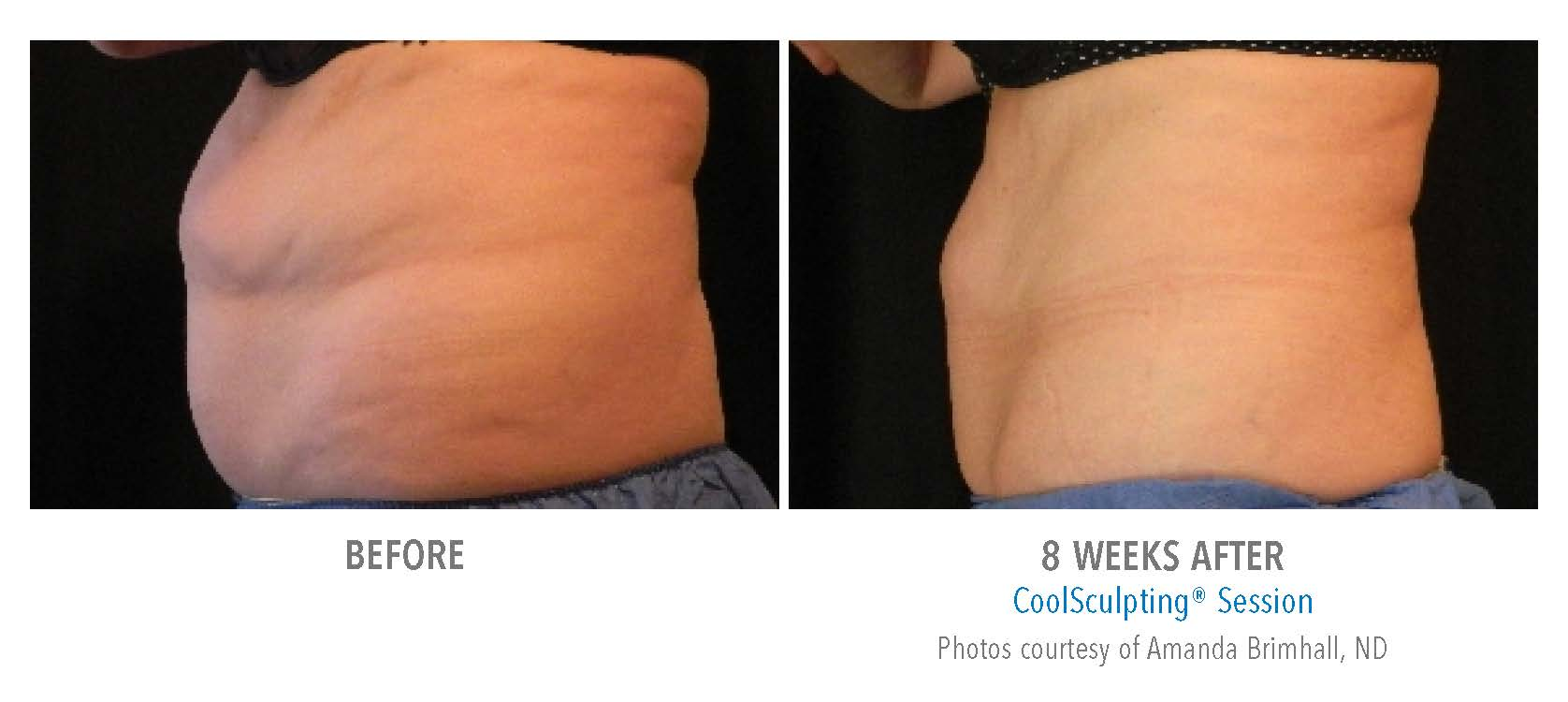 before after coolsculpting