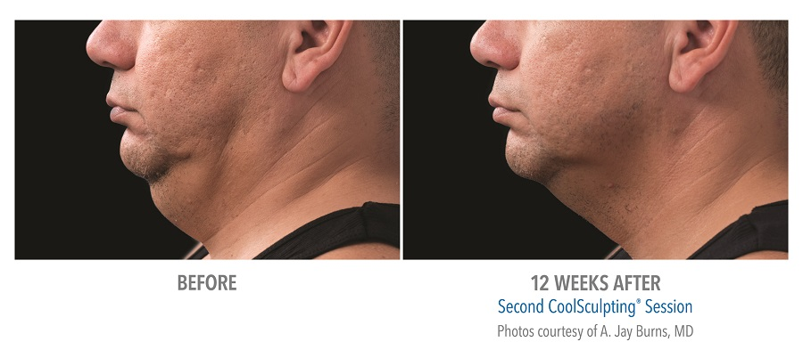 Bellevue CoolSculpting, Body Shaping, Weight Loss & Fat Removal