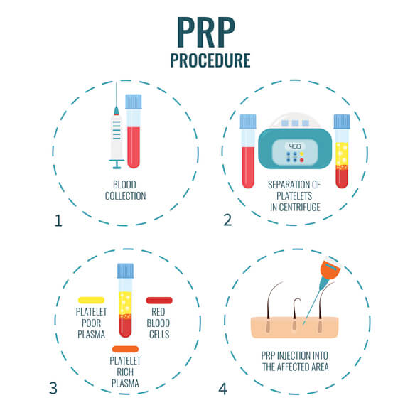 What is PRP Treatment.jpg