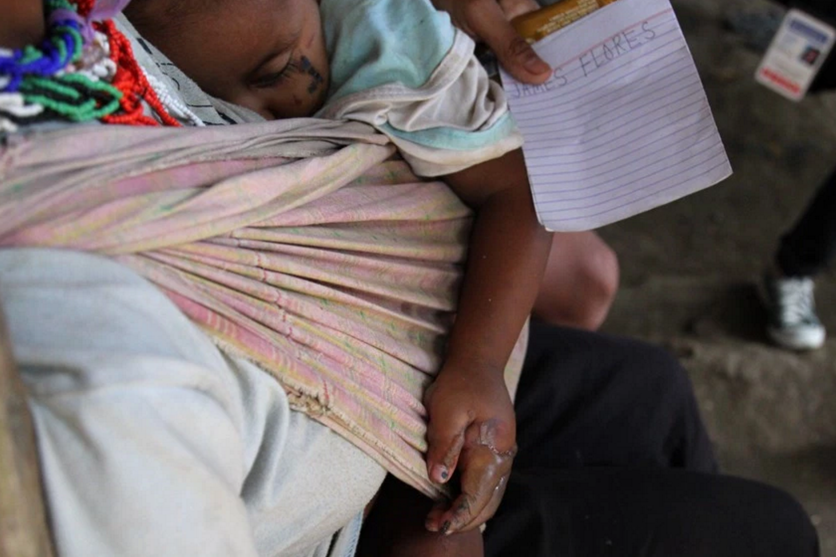 2-year-old, Demon Manayab sustained second degree burns on both hands after the fire partially damaged their temporary shelter. (Photo by Ace R. Morandante/davaotoday.com)