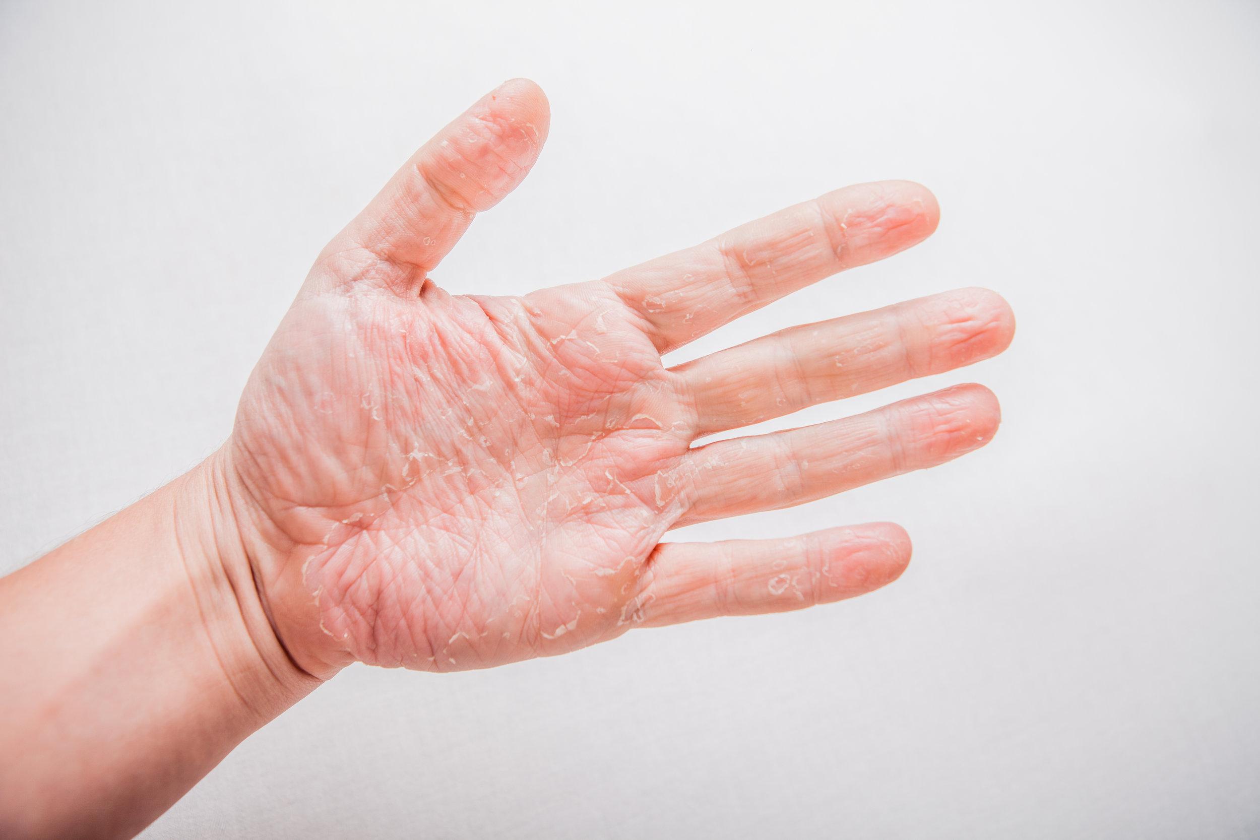 Que faire en cas de syndrome main-pied ? - Que faire en cas de syndrome main-pied ?