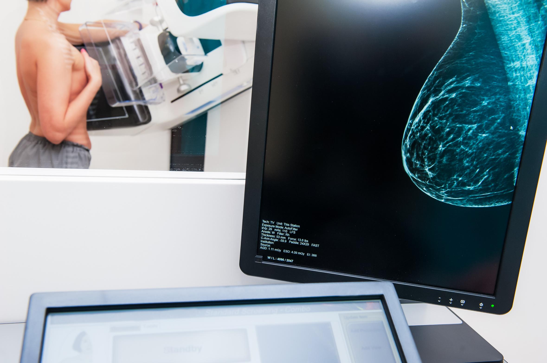 - La mammographie est le meilleur moyen pour dépister le cancer du sein.