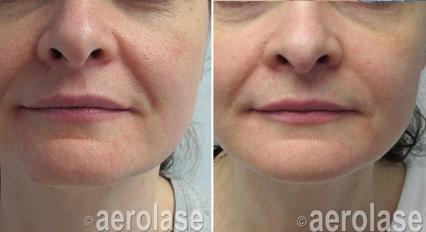 Skin Rejuvenation6 - Pair.png