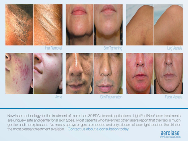 We are VERY excited to introduce the Aerolase LightPod Neo to our practice. This is laser safe to use in all skin types, even the most pigmented. We can now offer you more effective options for  laser hair reduction , acne/ acne scars , melasma , skin redness , skin rejuvenation, and  many other conditions .  Please contact us TODAY to find out more about our new laser and the great introductory package discounts (10-15% off).