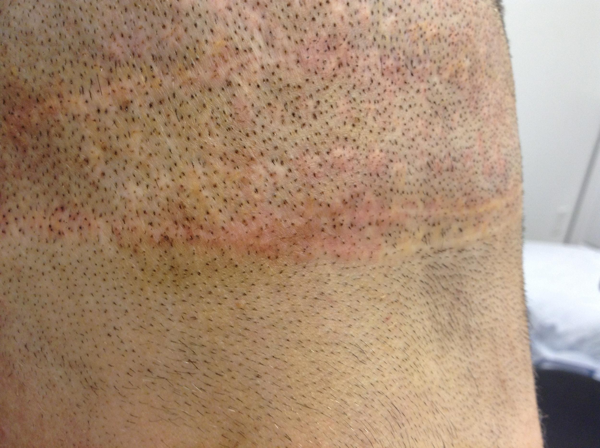 complete app of pigment into scar.JPG