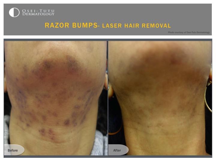 Razor Bumps Osei Tutu Dermatology