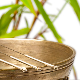 ACUPUNCTURE SERVICES -