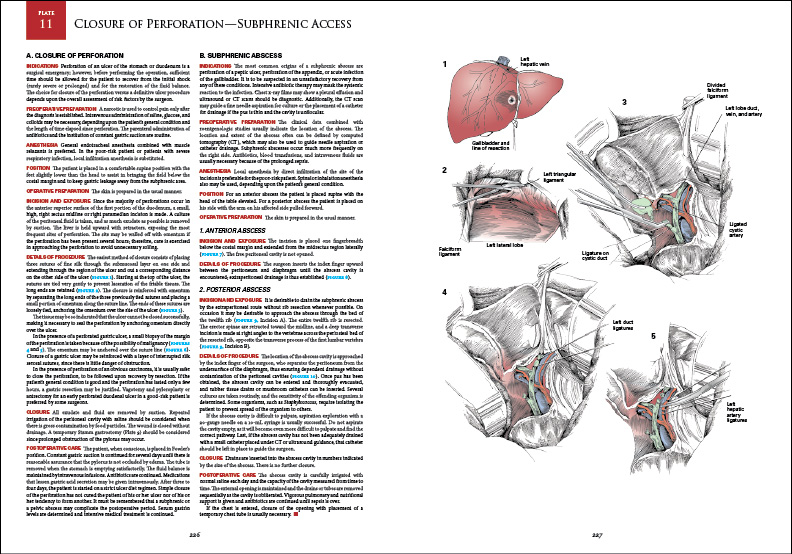 Spread from  Zollinger's  Atlas of Surgical   Operations  , published by McGraw-Hill Education.