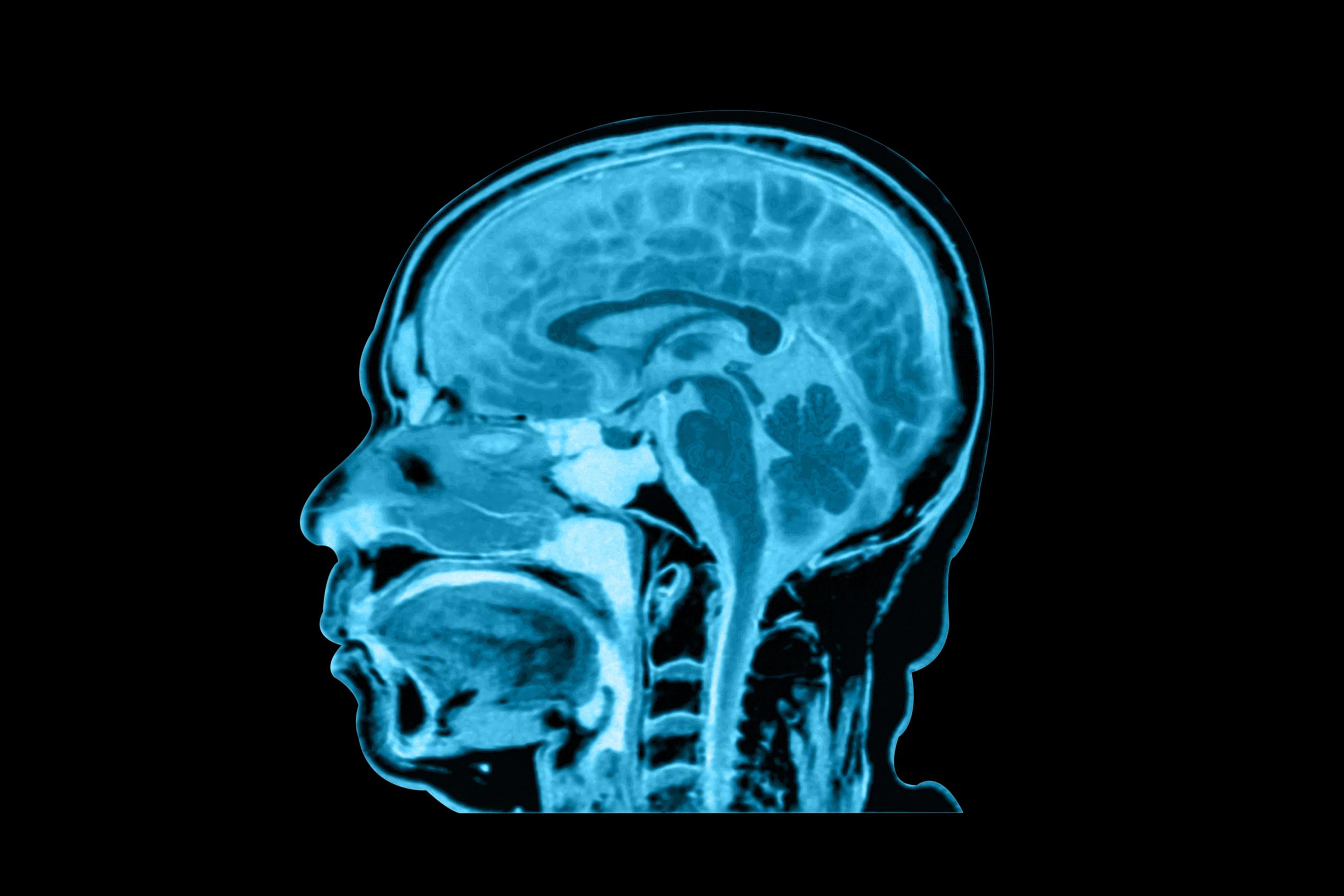mri brain large.jpg