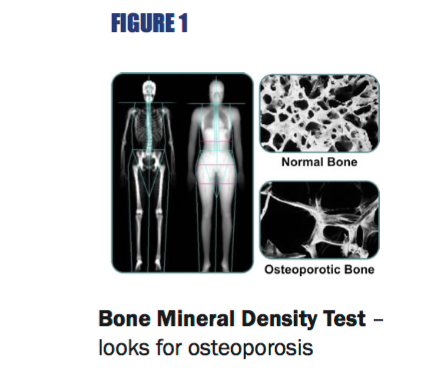 FIGURE 1  Bone Mineral Density Test – looks for osteoporosis