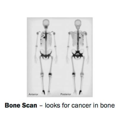 FIGURE 1  Bone Scan – looks for cancer in bone