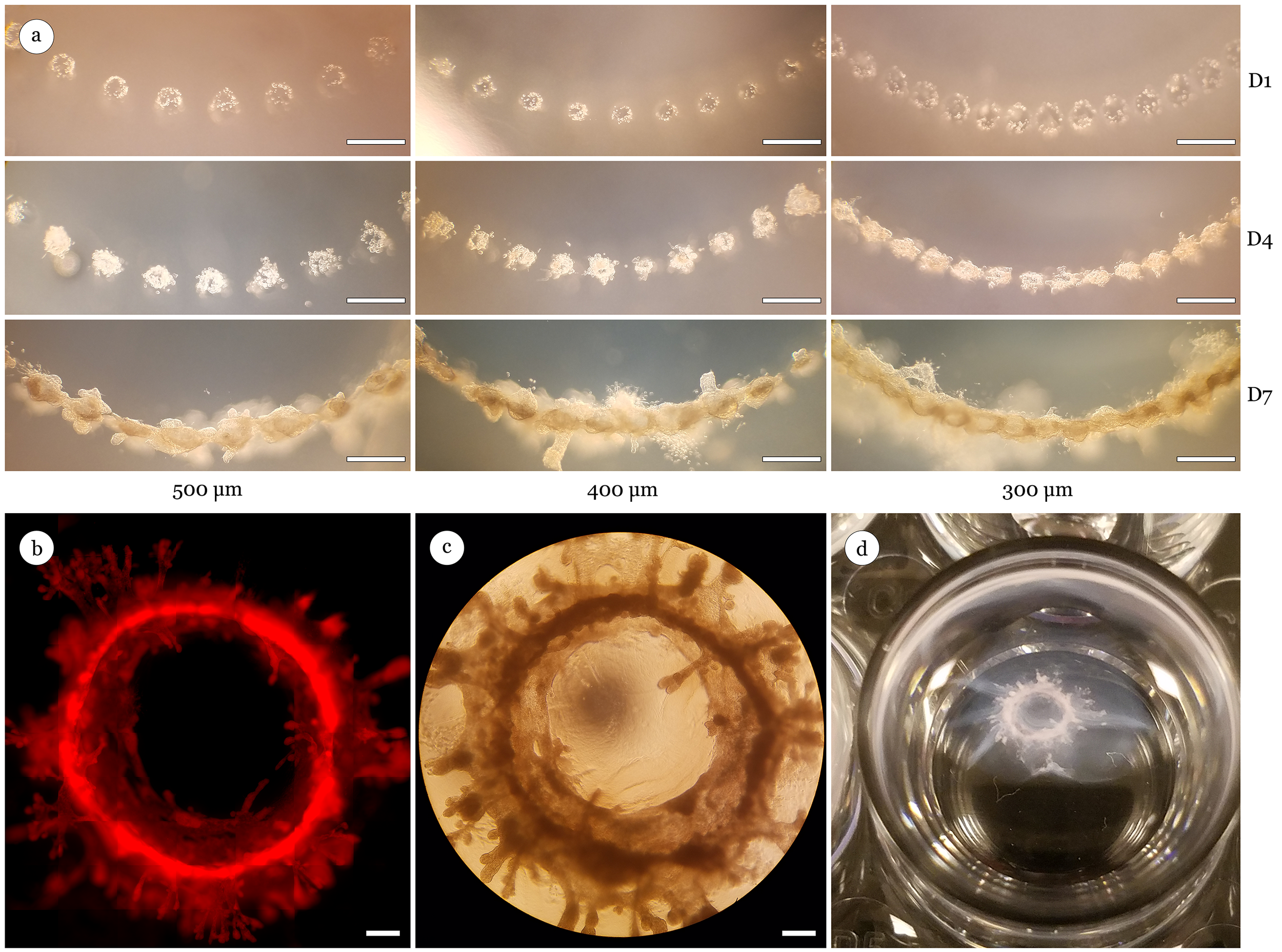 Directed printing of non-linear organoids. (a) MCF-12A cells (40 cells per deposit) printed in a radial pattern with print spacings of (a) 500μm, 400μm, or 300μm. Images of cell clusters illustrate the ability to direct large scale mammary structures within 7 days using additional geometric configurations. (b) Fluorescent image of bioprinted, RFP MCF-12A cell clusters 14 days post-print demonstrating fusion of individual organoids into a contiguous circular organoid. (c) Brightfield image of large circular organoid 14 days post-print. (d) Example of a large circular organoid inside 24 well culture plate 24 days post-print measuring ~4mm in diameter. Scale bar 500μm.
