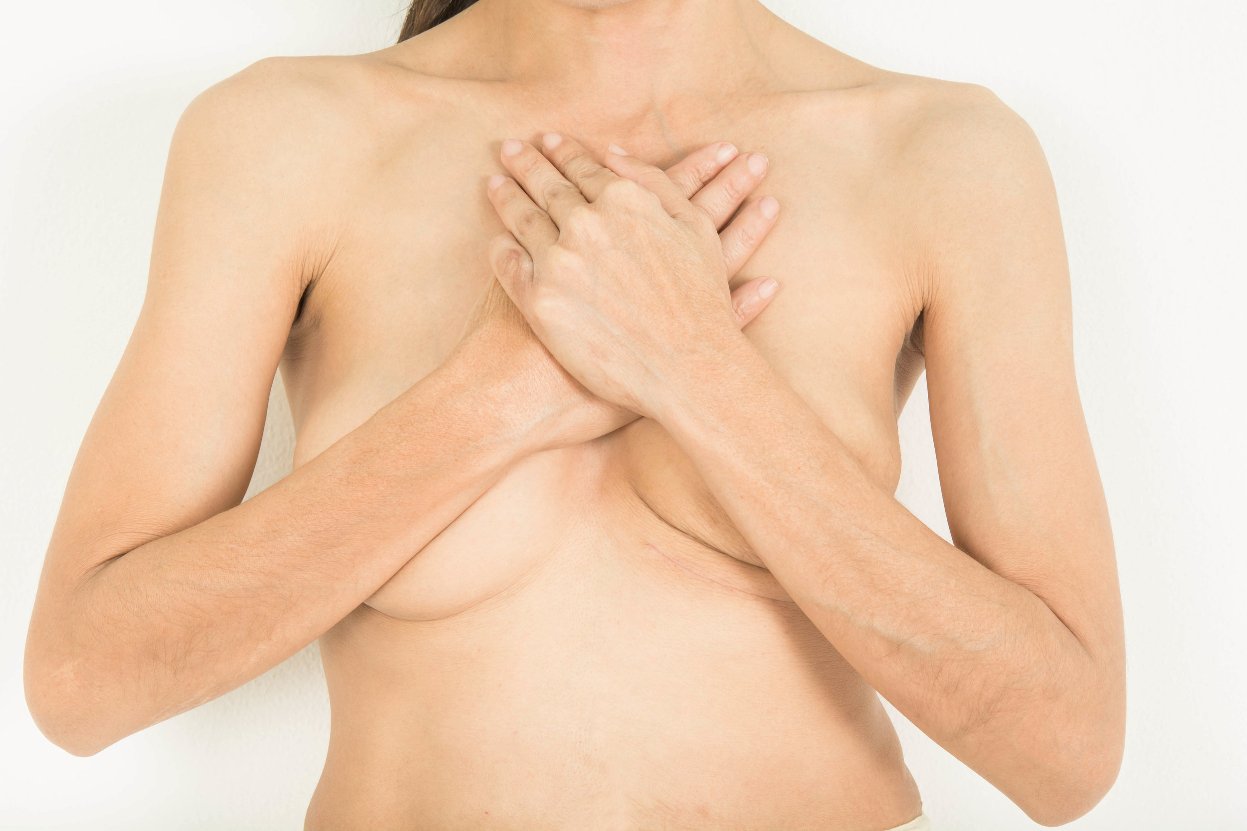 AdobeStock_199403186 Breast Recon.jpeg