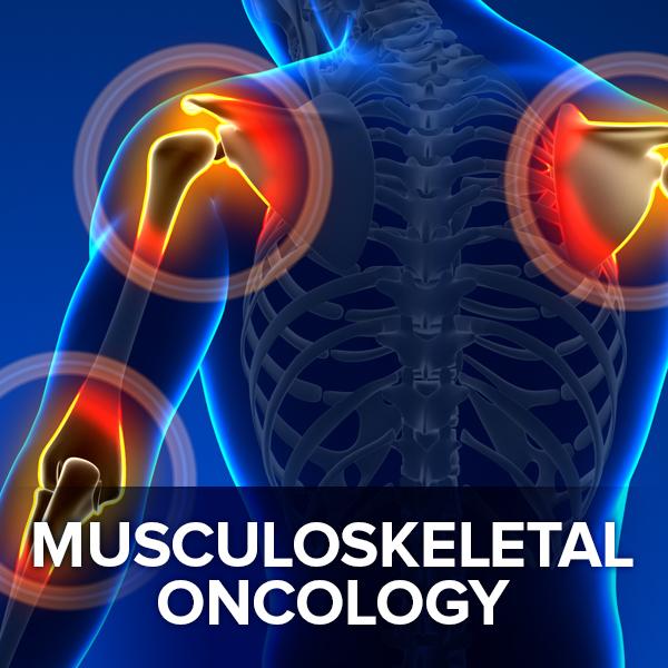 Musculoskeletal Oncology.jpg