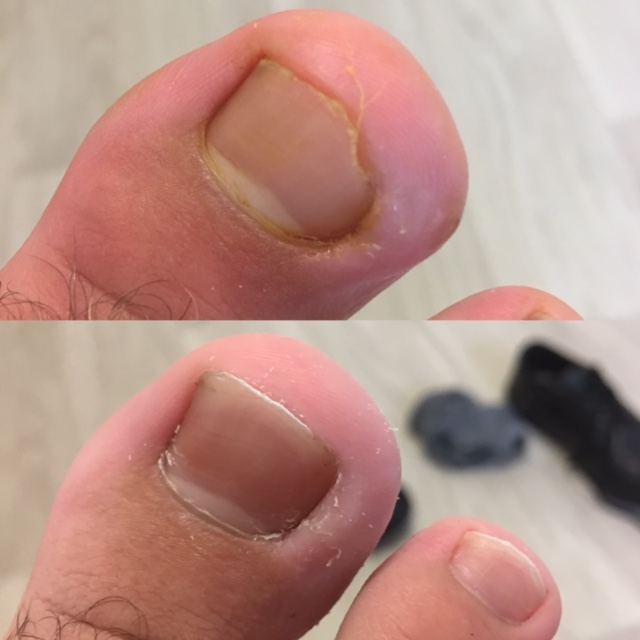 Patient sample 1.  Before and after treatment.  Performed by Pulse Podiatry