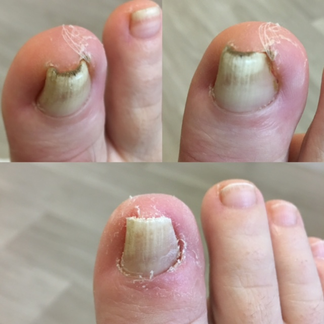 Patient 2.  Top: Before treatment  Bottom: After treatment.  Performed by Pulse Podiatry.