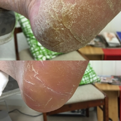 Patient 1.   Medical pedicure- Heel cracks, callous  Top: Before treatment  Bottom: After treatment.  Performed in one appointment by Pulse Podiatry