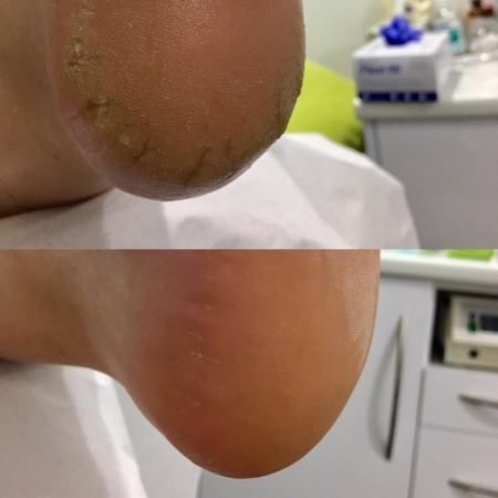 Patient 2.   Medical pedicure- Heel cracks, callous  Top: Before treatment  Bottom: After treatment.  Performed in one appointment by Pulse Podiatry
