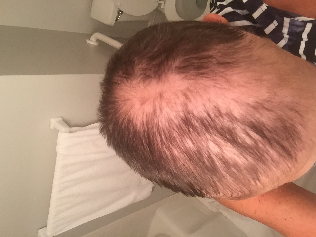 Hair_loss_chemotherapy