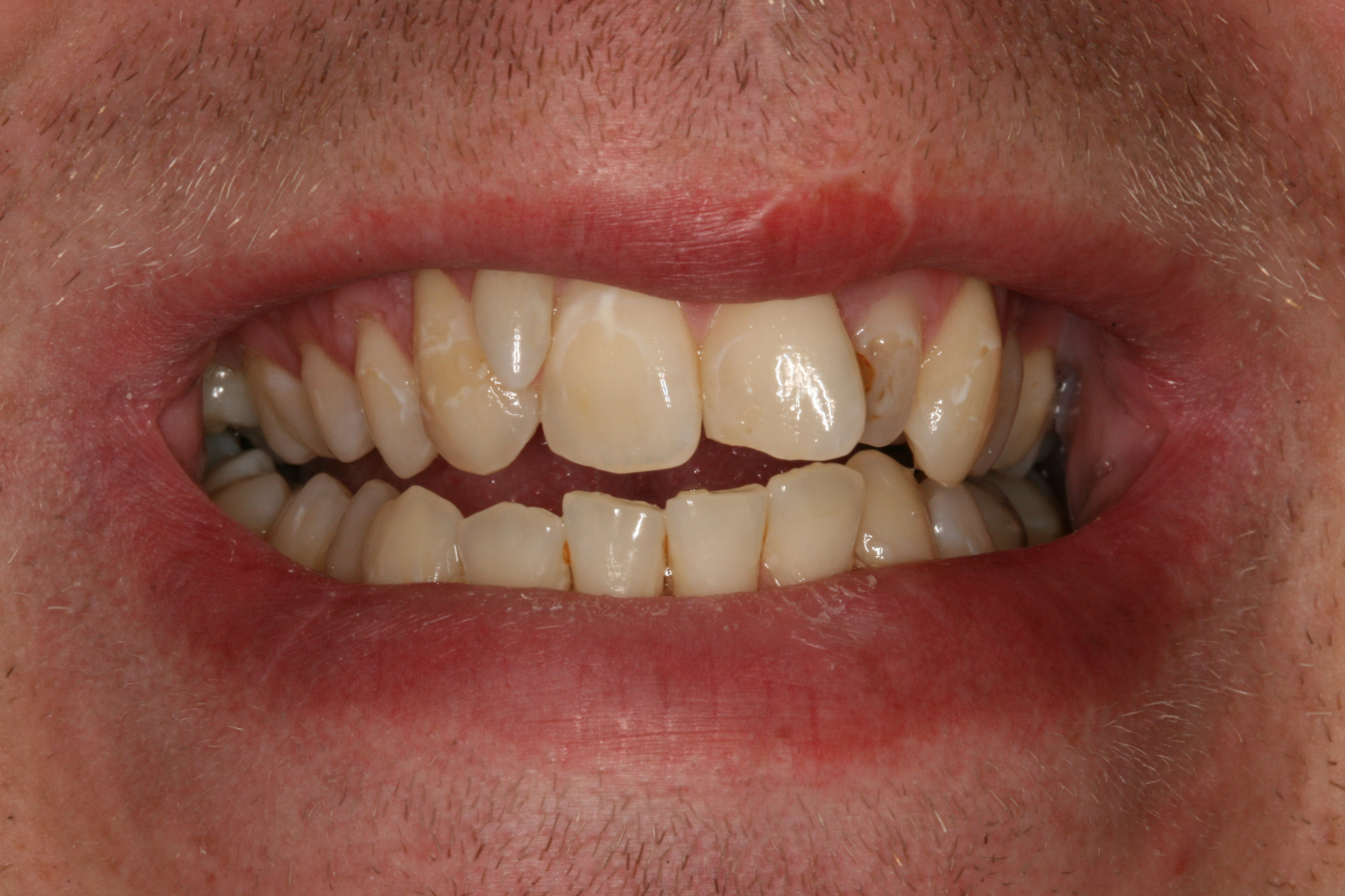 The Tuddenham Road Dental Surgery - Six_Month_Smilesa1.JPG