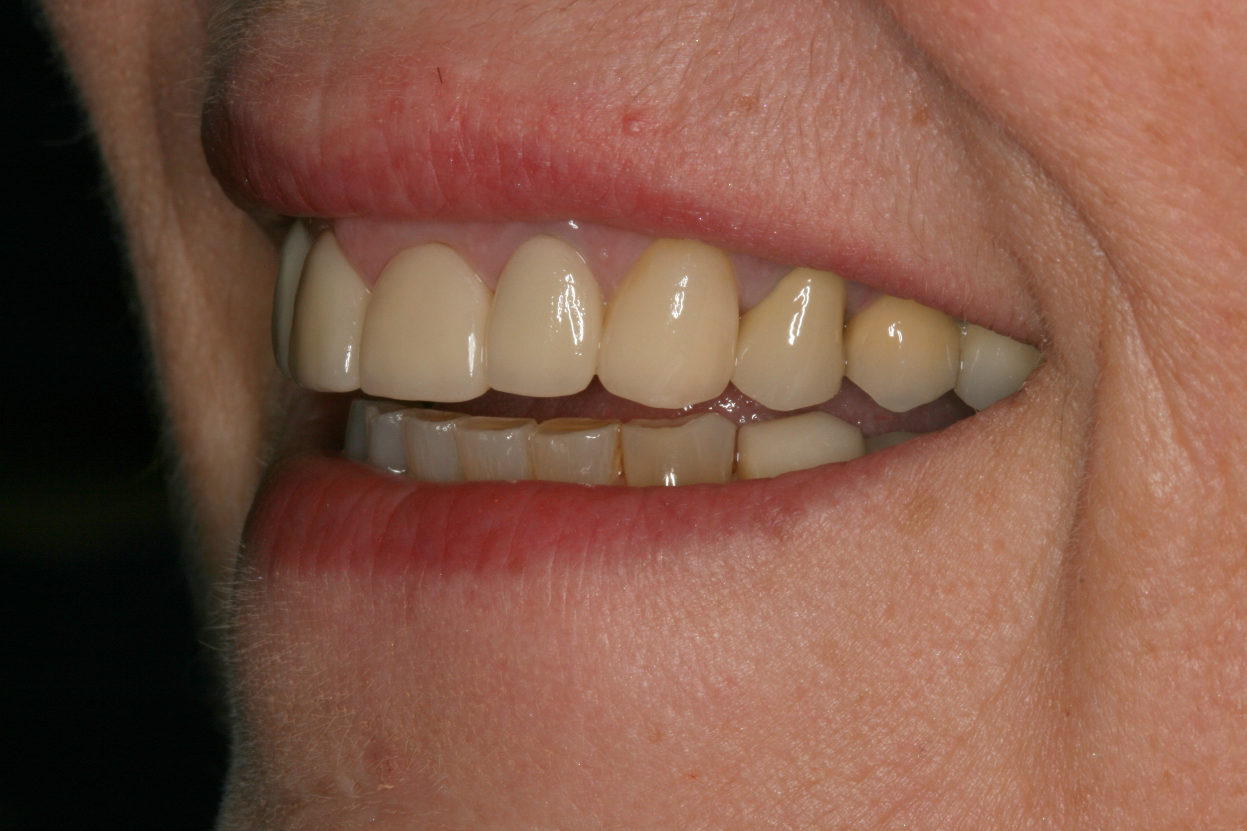 The_Tuddenham_Road_Dental_Surgery_Smile.JPG