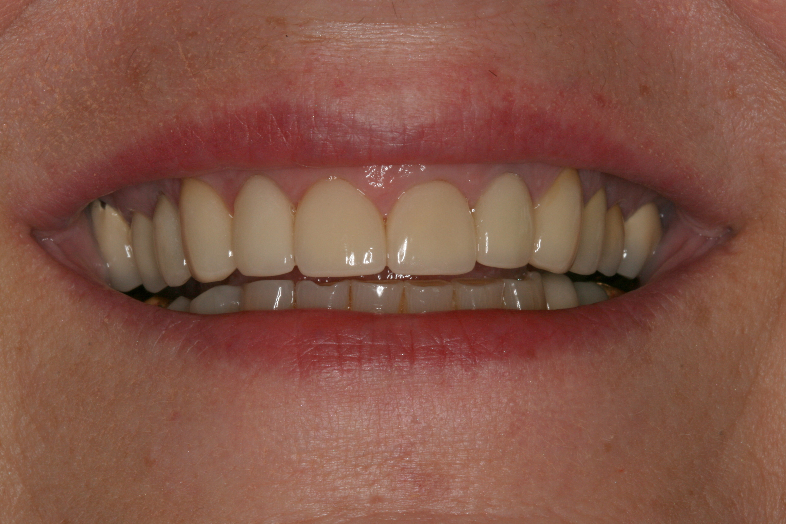 The_Tuddenham_Road_Dental_Surgery_Smile_Makeovers.JPG