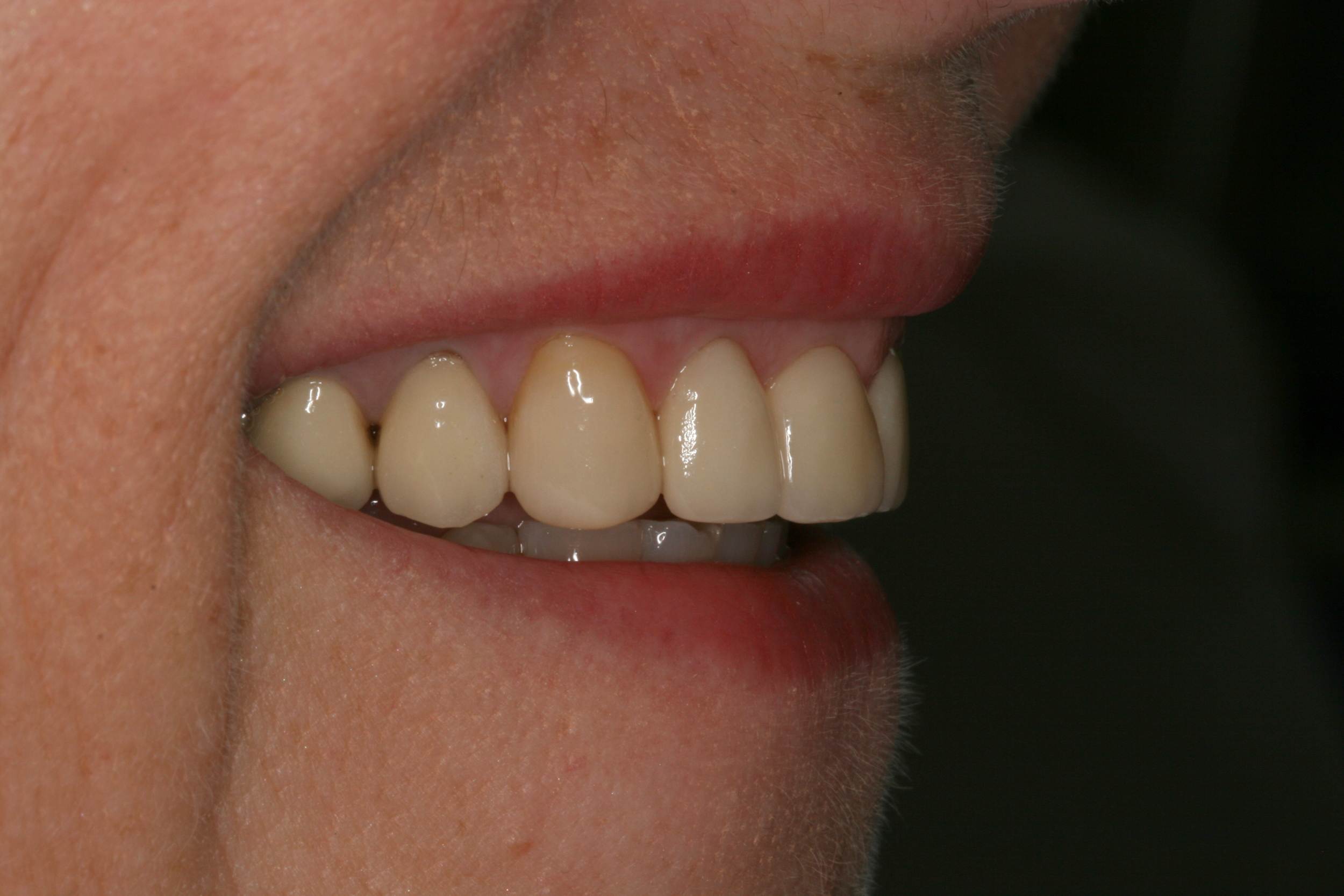 The_Tuddenham_Road_Dental_Surgery_Veeners_Side.JPG
