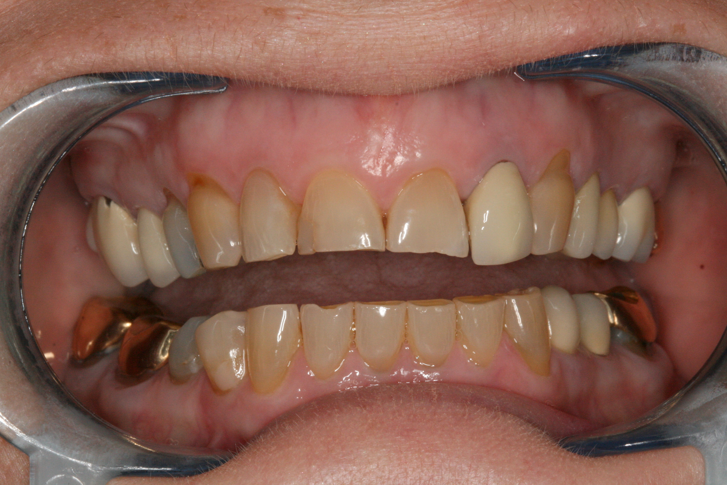 The_Tuddenham_Road_Dental_Surgery_Veneers.JPG