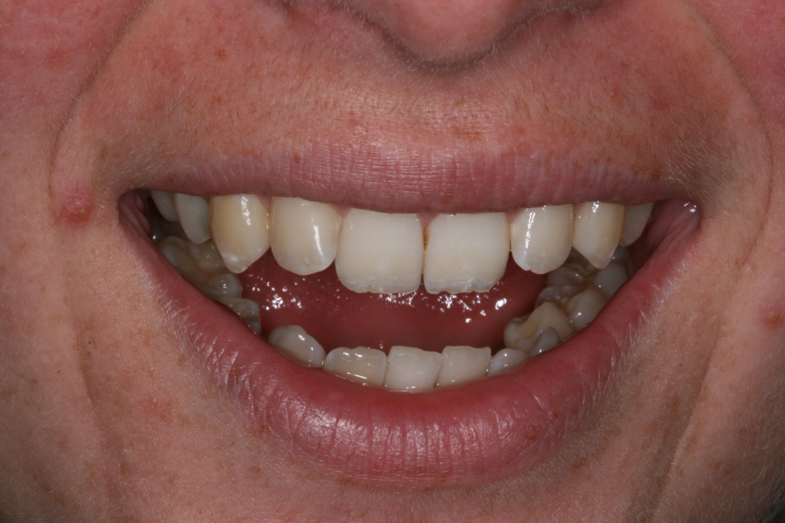 The_Tuddenham_Road_Dental_Surgery_Clear_Aligners1.JPG