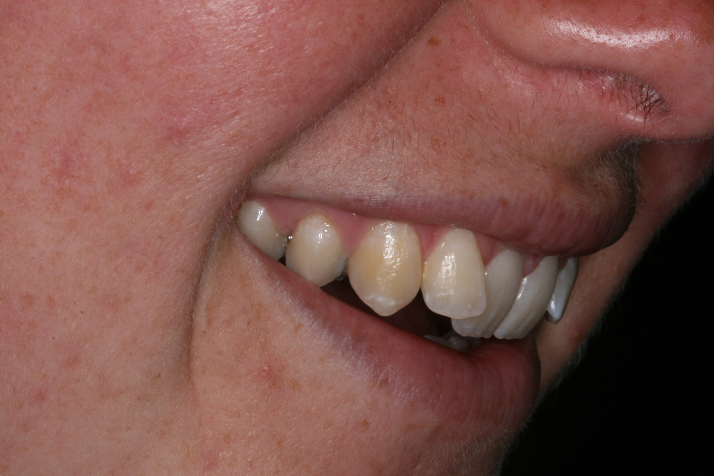 The_Tuddenham_Road_Dental_Surgery_Clear_Aligners5.JPG