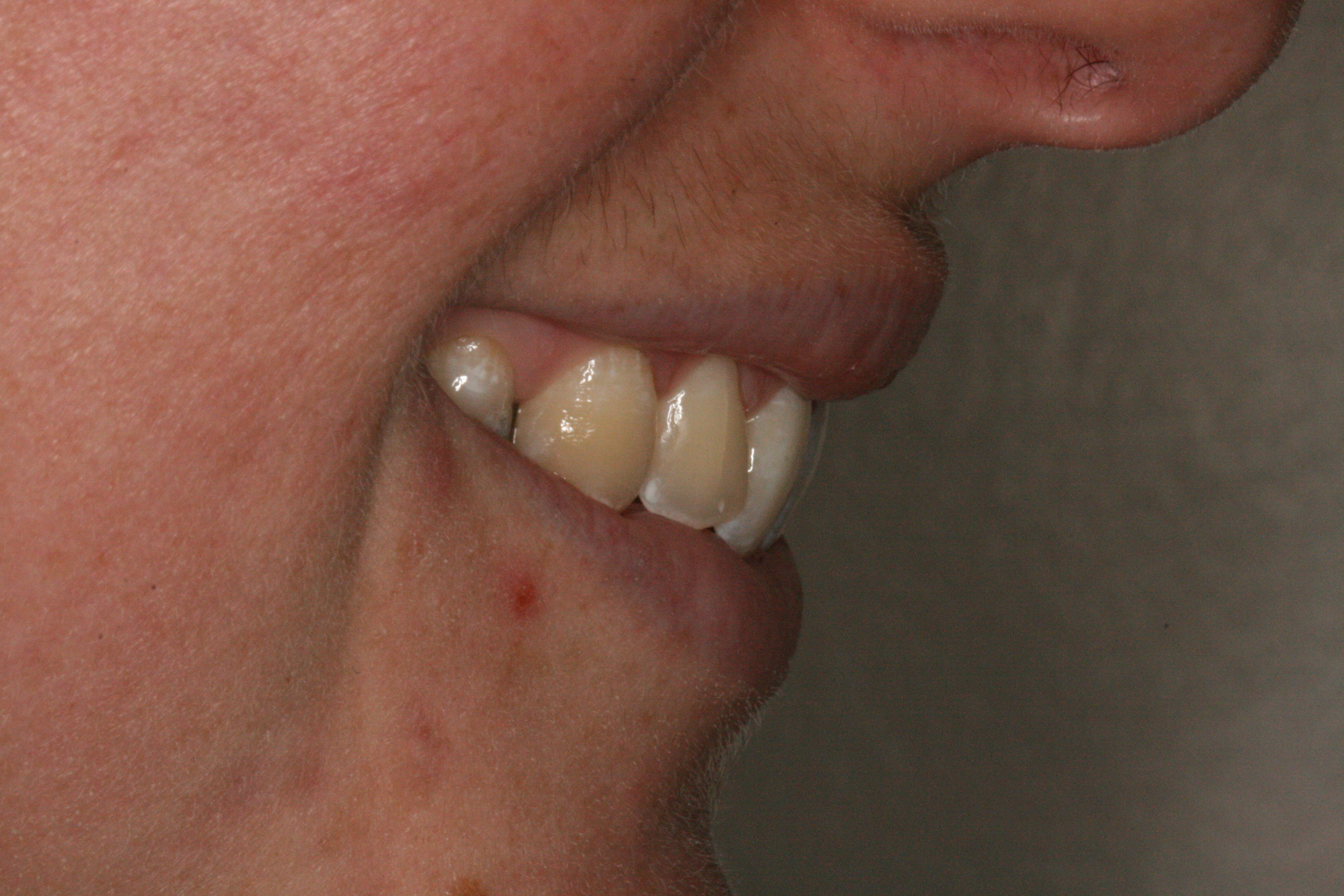 The_Tuddenham_Road_Dental_Surgery_Clear_Aligners4.JPG