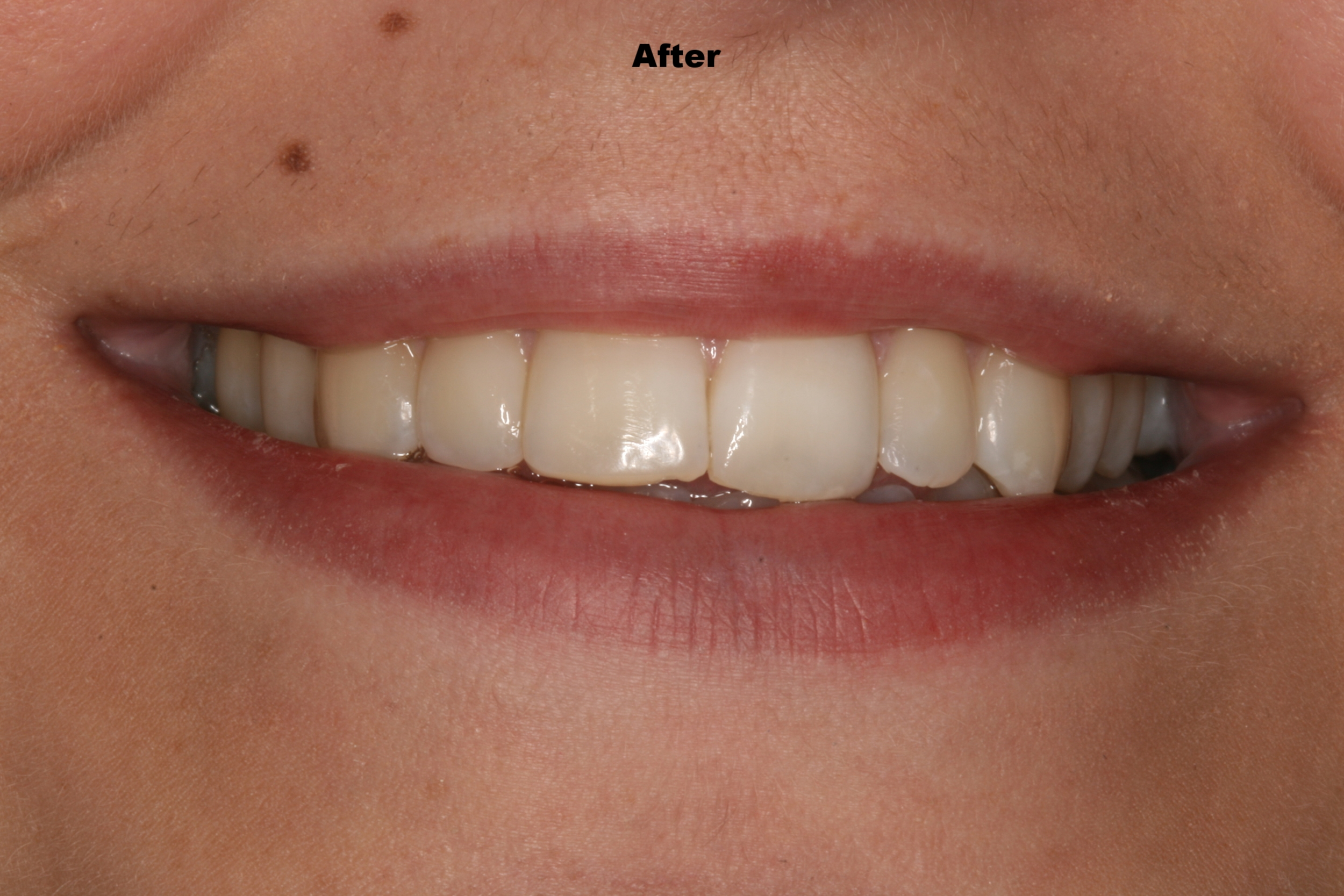 The Tuddenham Road Dental Surgery - Six_Month_Smiles2.JPG