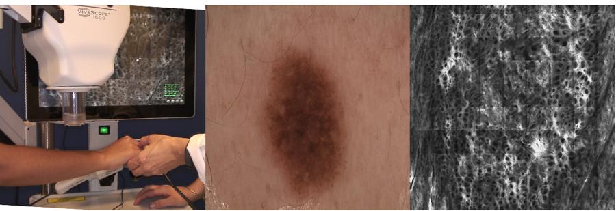NOVA_Dermatoscopia-I-(1).jpg