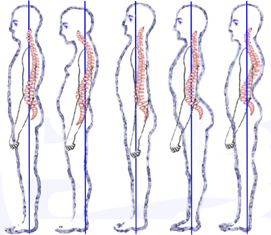 Posture_types_(vertebral_column).jpg