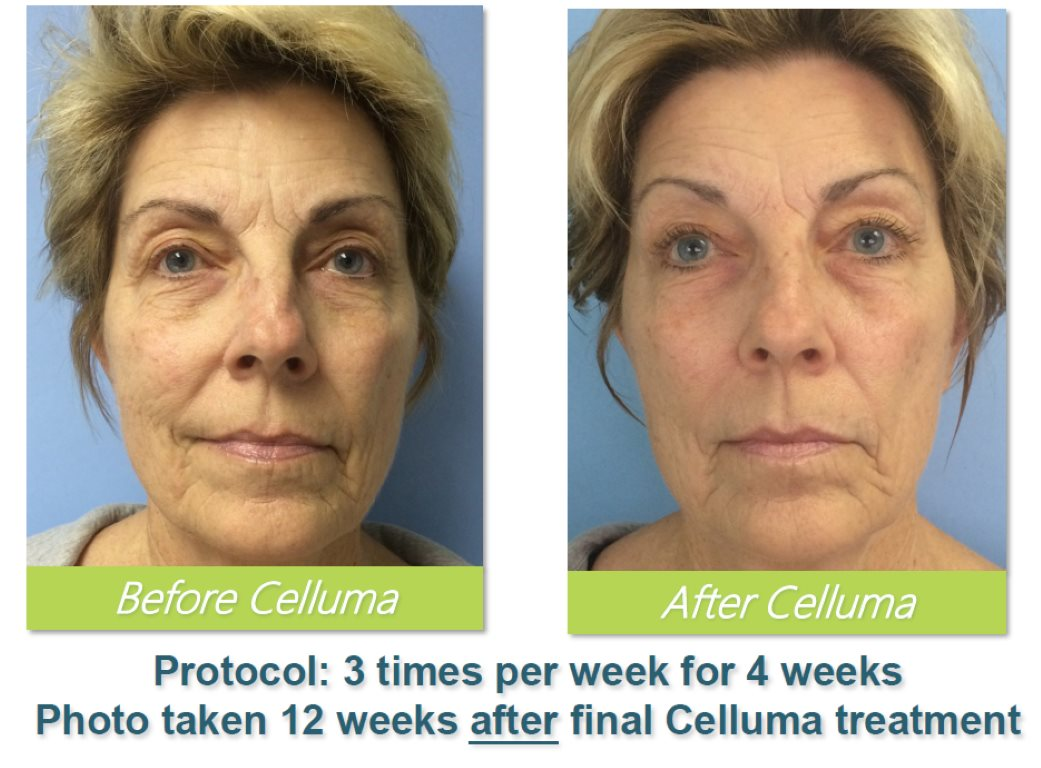 Before-and-After-Led-Light-Therapy-Celluma-Tampa-4.jpg