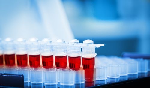 Elevated PSA, Negative Biopsies: What does this mean?