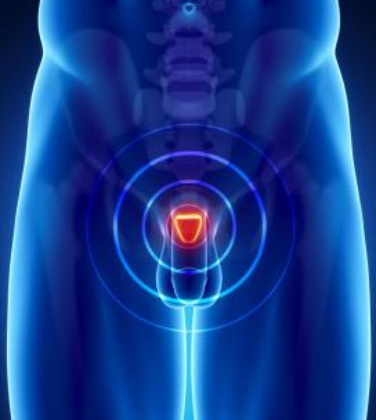 prostatecancerdailyorgasms.jpg
