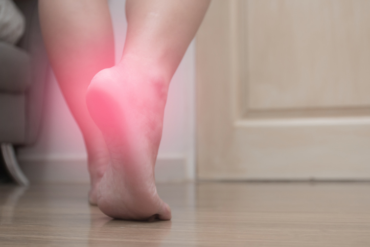 Closeup of female right foot heel pain, with red spot, plantar fasciitis