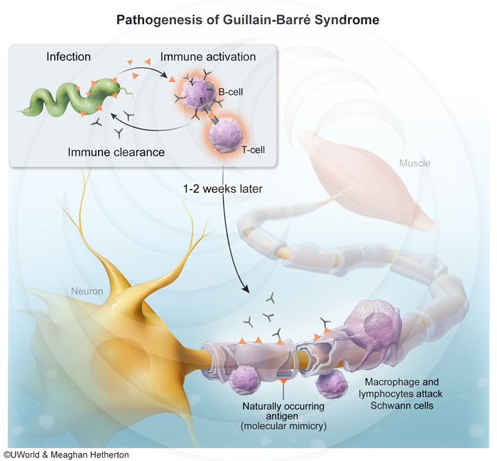 Pathogenesis-of-Guillain-Barré-Syndrome.jpg