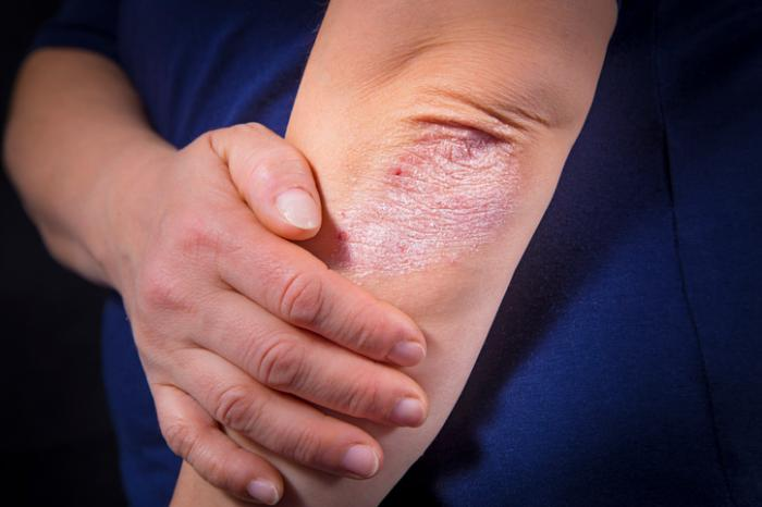 Got Psoriasis? - Looking for people with moderate to severe plaque psoriasis