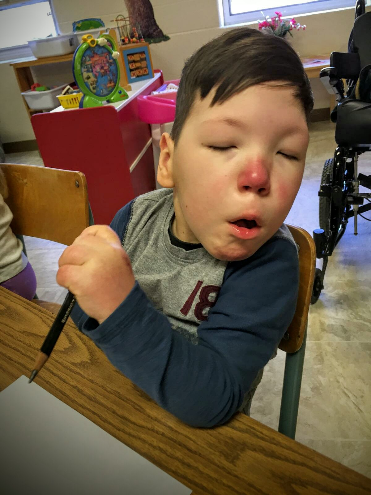 Pardon the red nose. On top of BiPAP reasons, he sometime gets toasty in his classroom.