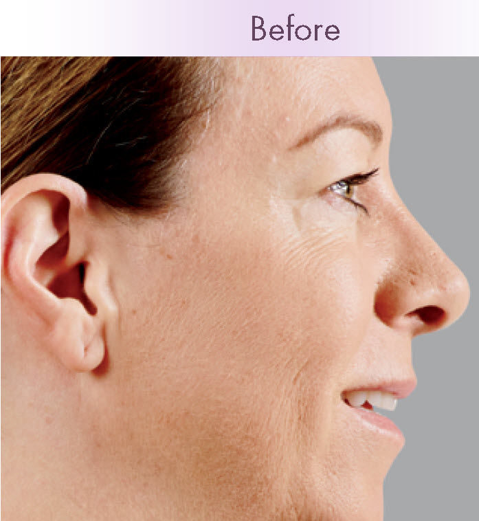 Results Vary. Juvederm before and after photos
