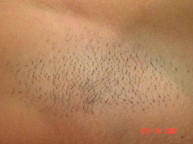 Laser Hair Removal In Boise Bikini Underarms Legs Spa 35