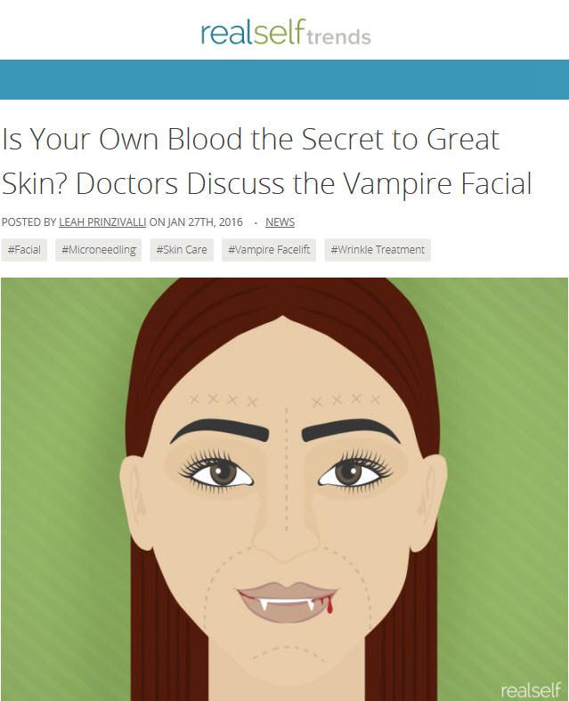 Vampire Facial Real Self Article