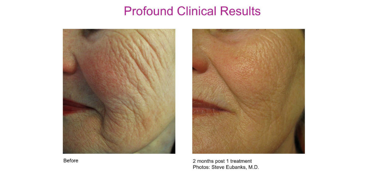 Profound lift skin tightening system stimulates the rebuilding of elastin and collagen. These are key componets to tight youthful looking skin