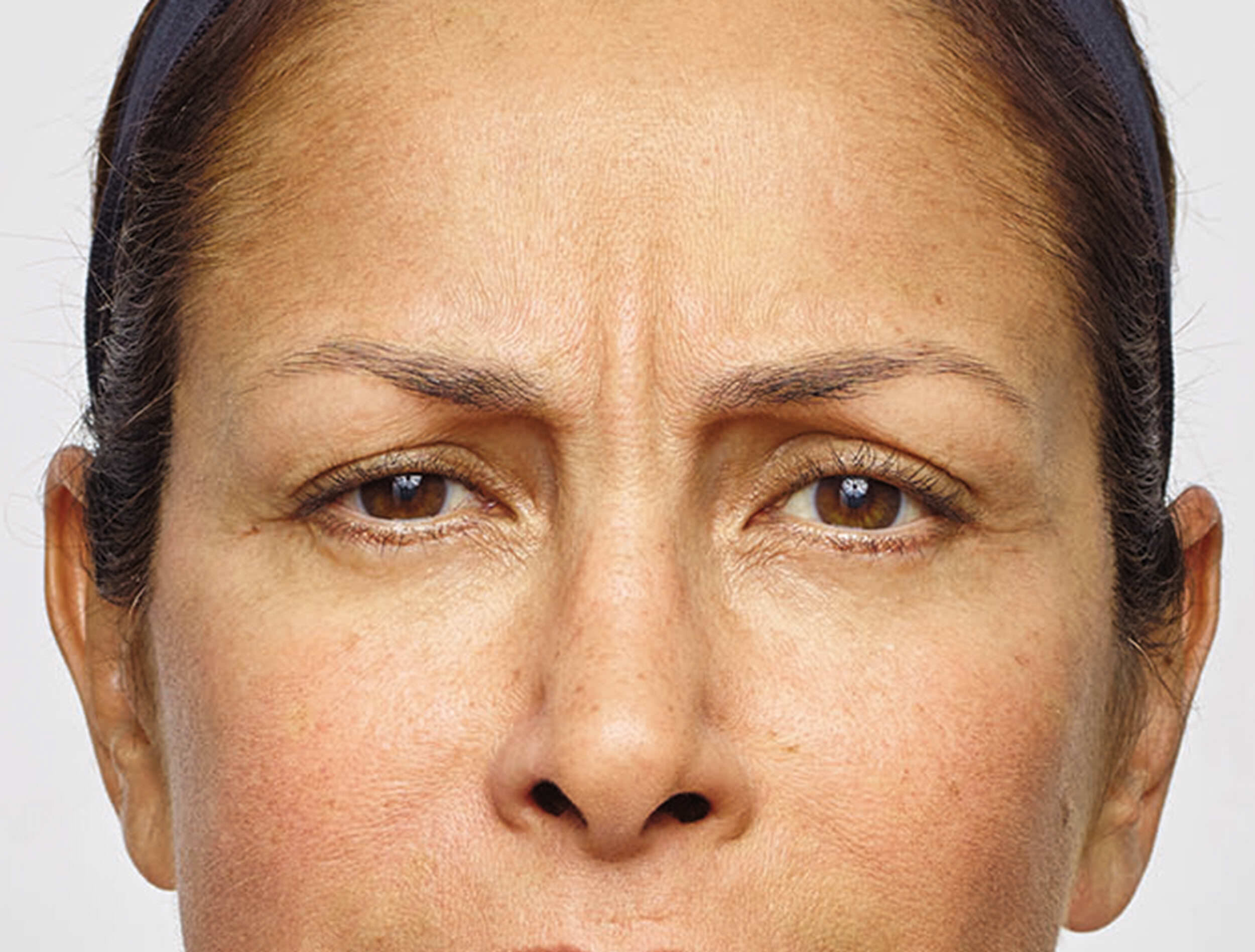 Botox - Relax Crow's Feet & Lines, Look Relaxed and Refreshed