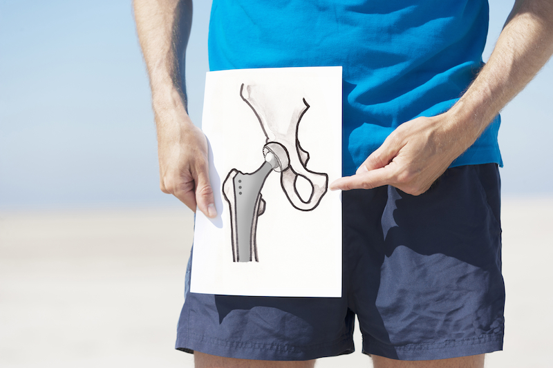 stock-photo-20942998-total-hip-replacement.jpg